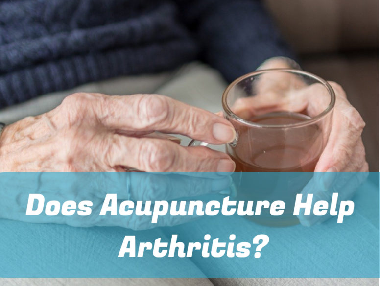 Does Acupuncture Help Arthritis 1