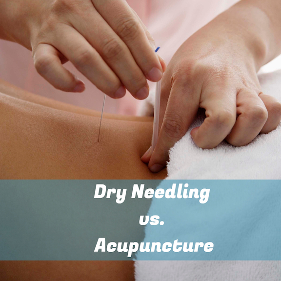 Dry Needling vs. Acupuncture | Acupuncture Blog | Best ...