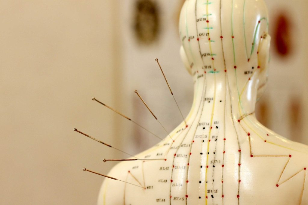 Acupuncture for Heart Disease | Acupuncture Blog | Best ...
